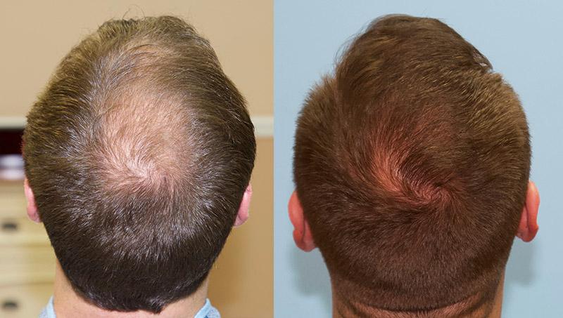Hair Cut Ideas for the Curly Hair Crown