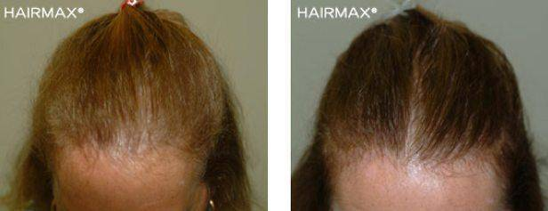 Check Out Hairmax Reviews for Great Design Ideas