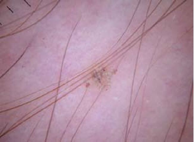 Itchy Pubic Hair Tips