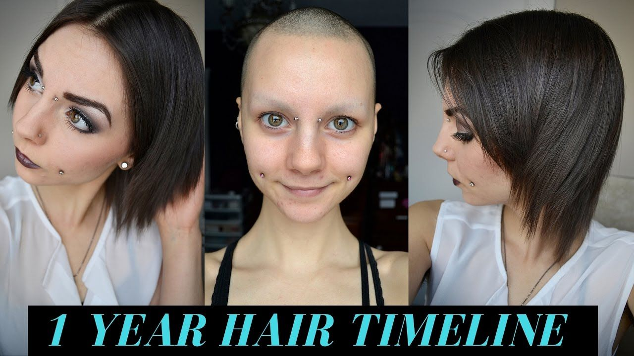 New 1 Year Hair Growth – Are You Still Alopecia Free?