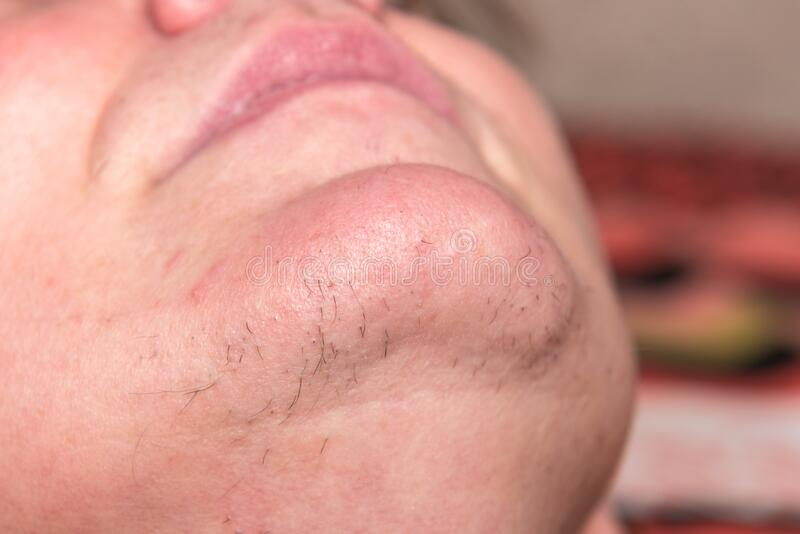 Latest Style Trends For Women With Chin Hair