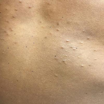 Eruptive Vellus Hair Cysts – A Model Idea That Can Be Hard to Live With