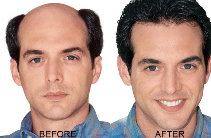 Latest Design Hair Direct