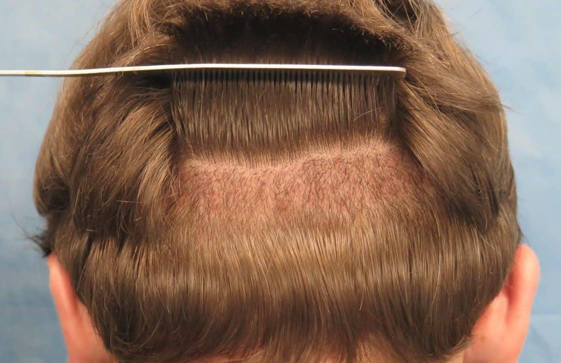 Modern Design Ideas – Hair Graft