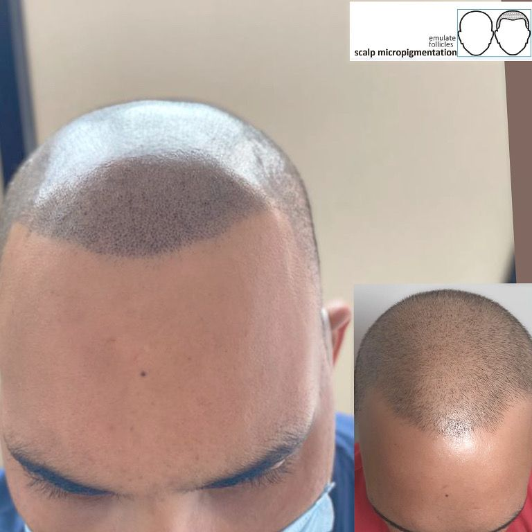 Beautiful Styles With Hair Micropigmentation