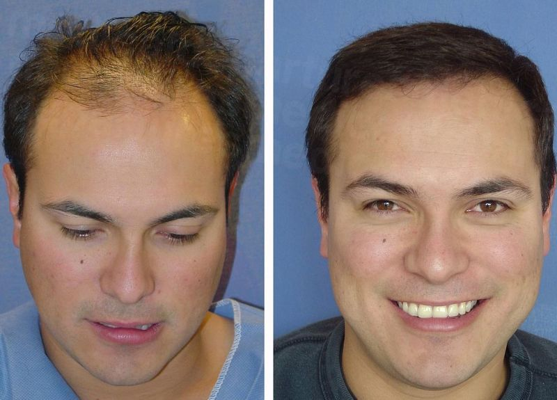 Cutting Costs on Hair Plugs Cost Transplants and Hair Transplant Surgery in Edmonton