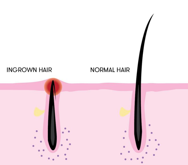 Inflamed Beards – Ingrown Beard Hair Model Ideas