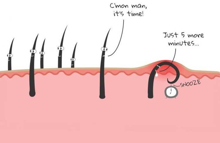 Beautiful Styles to Prevent Ingrown Hair on Butt