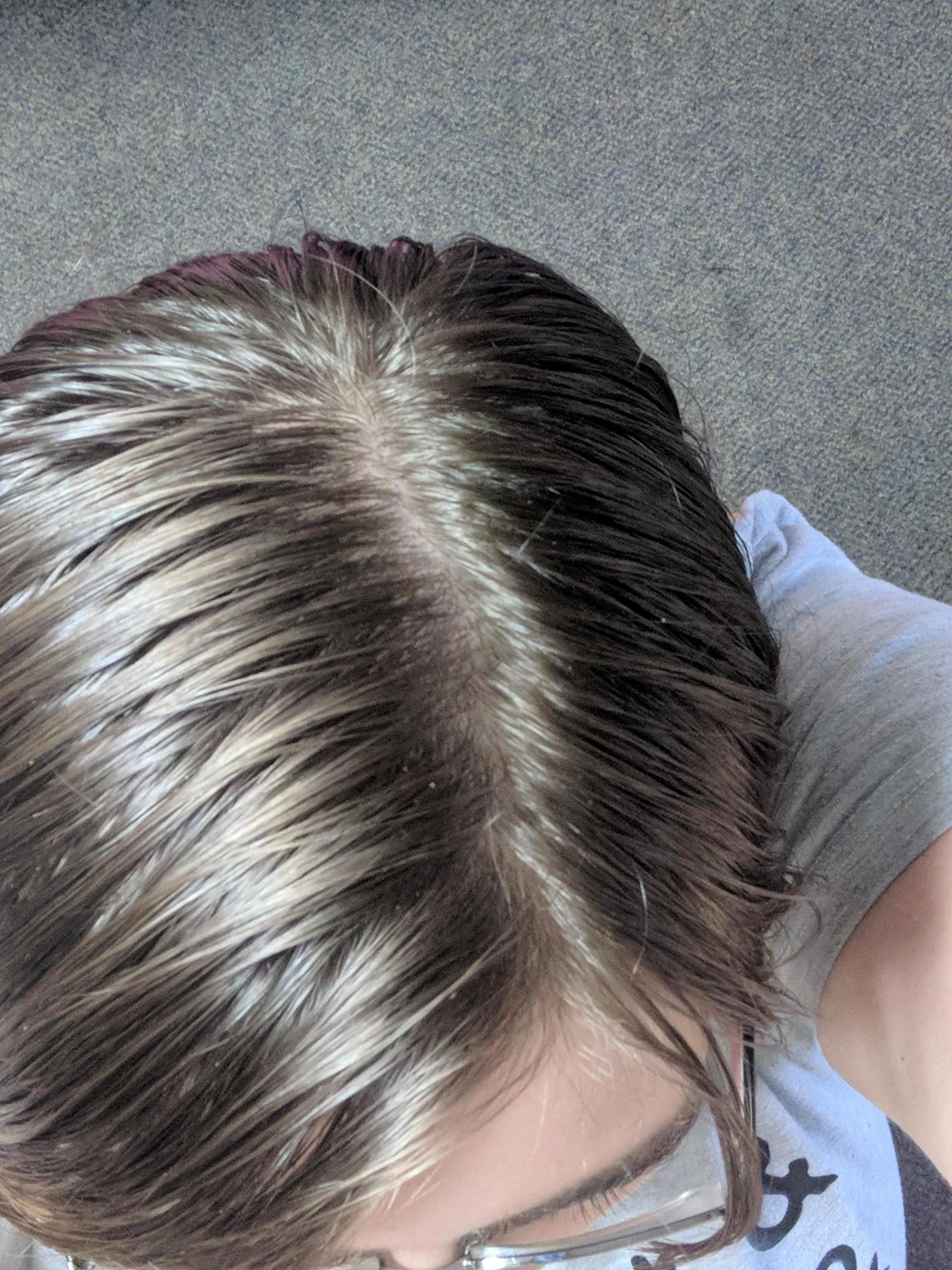Modern Design Ideas for Receding Normal Hairline