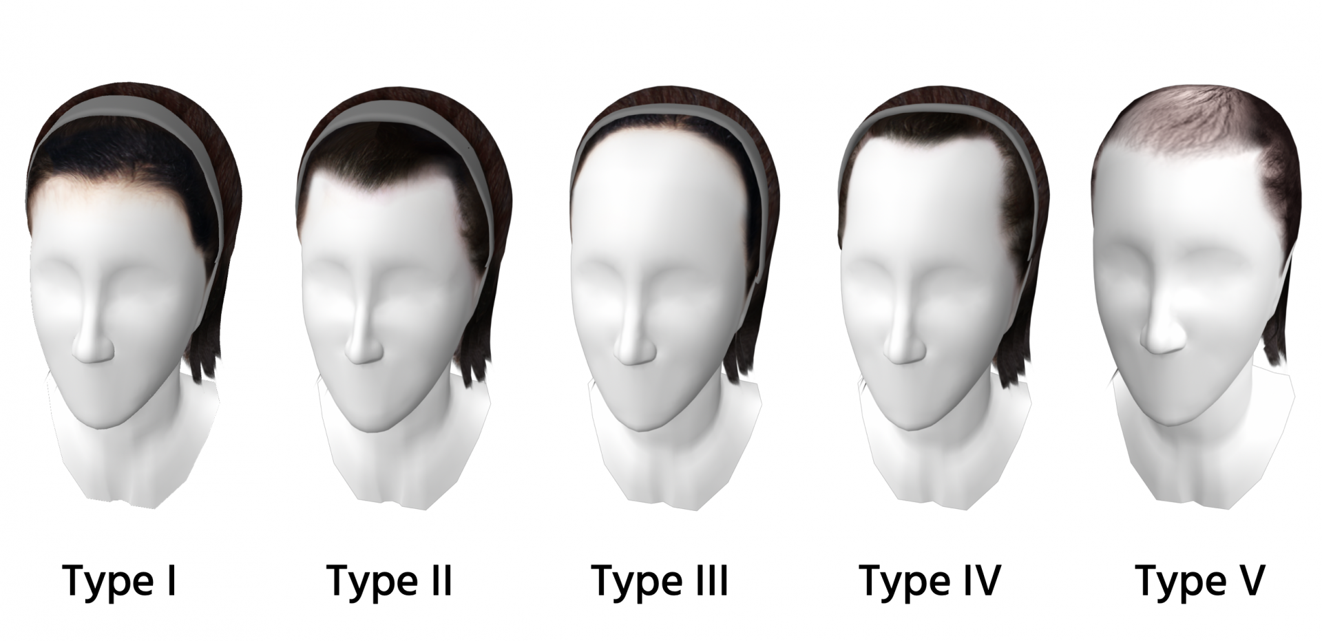 Types of Styles – For Different Types of Hairlines
