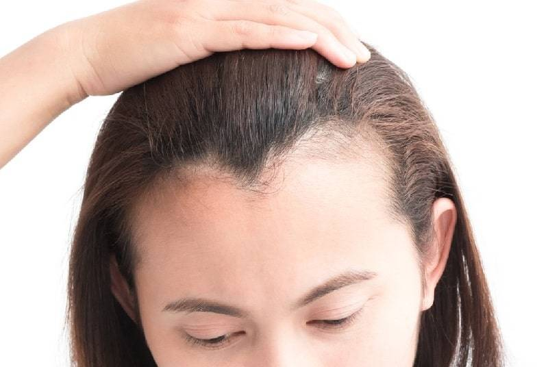 Interesting Design Ideas – How to Straighten Your Inset Uneven Hairline