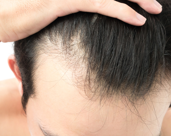 Why Am I Losing Hair? The Answer to That Question and Modern Model Treatments